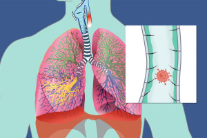 From a click and play animation whereby students click on each process of the body to understand what happens to toxins once they enter our body. Global Environmental Course: Lesson 4 Toxicology and Human Disease